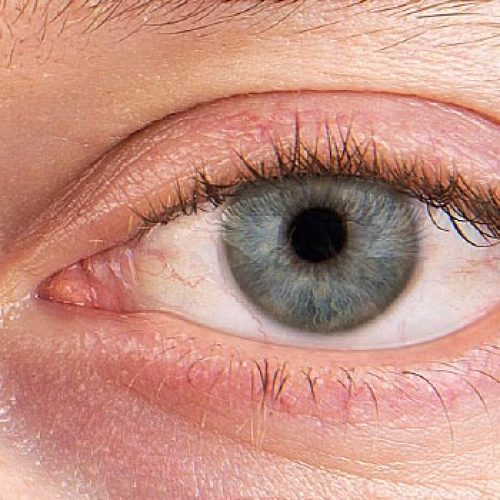 Is high humidity bad for dry eyes?